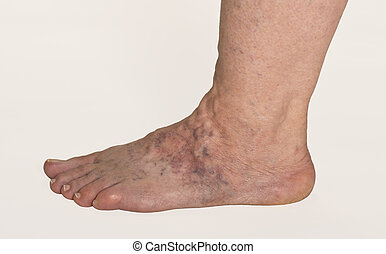 Varicose Veins On A Female Foot