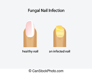 fungal nail infection - illustration of fungal nail...