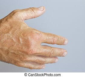 Un, imagen, hinchado, macho, mano