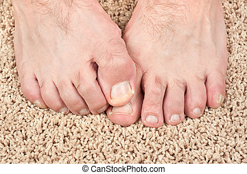 Itchy feet - A man with itchy feet uses his big toe to...