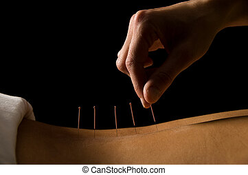 Acupuncture - Woman getting an acupuncture treatment in a...