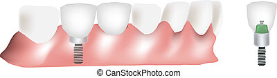 dental prosthesis - prosthesis of a missing tooth