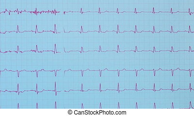 heart pulse results - EKG heart monitor printed out