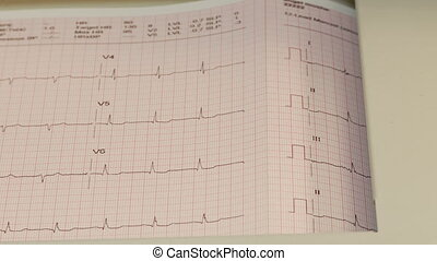 EKG results output - clinical EKG results
