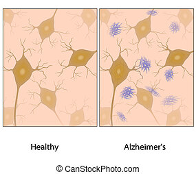 Alzheimers brain tissue w amyloid - Alzheimers disease brain...