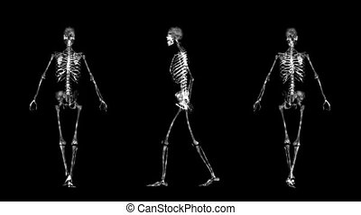 skeleton - walking skeleton
