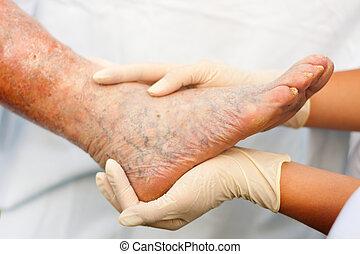 Varicose veins - Doctor / Nurse holding an elderly woman's...