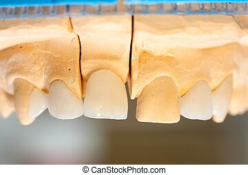 Dentist 's work - World leading e-max ceramic crowns and...
