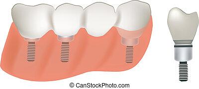 dentist - dental prosthesis