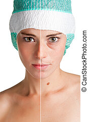 Skin care - Before and after portrait of a young woman that...