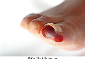 Dry gangrene is seen affecting the big toe of a diabetic...