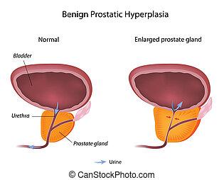 Benign prostatic hyperplasia BPH, eps10