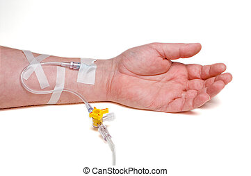 Patient IV - A medical patient with an IV in his arm