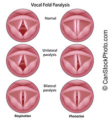 vocal, pliegue, parálisis, eps8