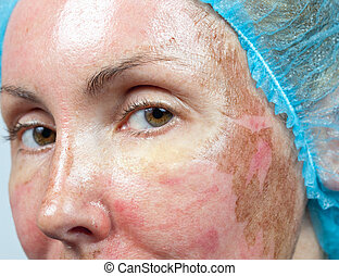 Cosmetology. New skin after a chemical peeling, a redness...