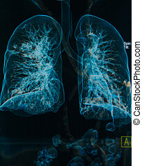 chest X-rays under 3d image ,lungs 3d image