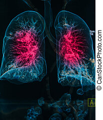 chest X-rays under 3d image ,lungs 3d image pulmonary...