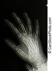 Children hand x-ray image