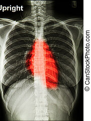 x-rays image of  the painful chest or heart attack