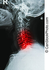 cervical spine neck x-ray image - x-ray image of the painful...