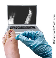 Foot surgery - a picture of a foot, needle and x-ray