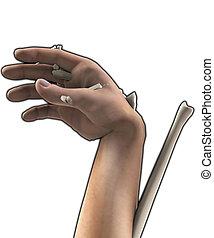 Terrible Hand Injury