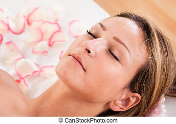 Woman undergoing acupuncture treatment with a line of fine...