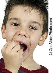 Little boy shows a broken tooth. Close up