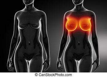 Female breast comparison with wireframe