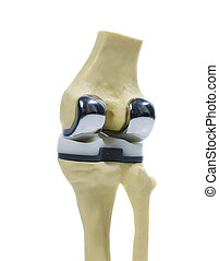 plastic model of a knee replacement - plastic study model of...