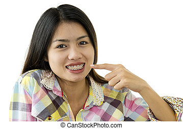 asian beauty with dental braces - young beautiful asian...