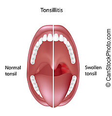 Tonsillitis, eps8 - tonsil normal and inflammation