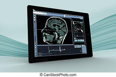 Digital tablet showing brain interface on blue wave...