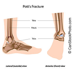 Potts fracture, eps8 - Common ankle fractures, sport injury