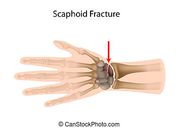 Scaphoid wrist fracture, eps10 - Scaphoid bone fracture,...