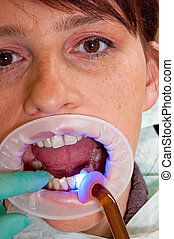 The dentist - Dental treatment in a young woman in a...