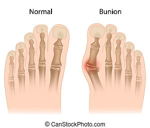 Bunion in foot, eps10 - common problem with tight fitting...