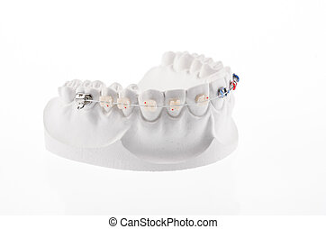 Dental lower jaw bracket braces model isolated on white