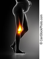 Knee joint problem in pregnancy