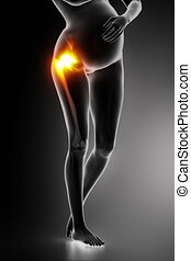 Hip joint problem in pregnancy
