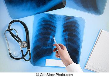 Raio X, imagem, pulmões