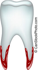 Pulled tooth with blood on white background