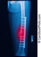 broken human thigh x-rays image with implant plate and screw...