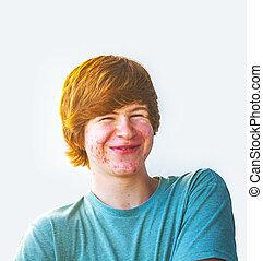 elegante, niño, Pubertad, acné