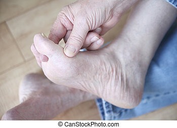 man rubbing his athletes foot - a man scratches the fungal...