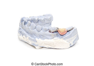 dental, Prótesis, yeso, modelo, yeso