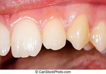 Healthy human teeth - A photo made by the dentist with the...
