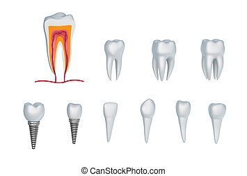 Set of teeth and implants. Isolated on white.