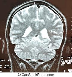 MRT eines Kopfes