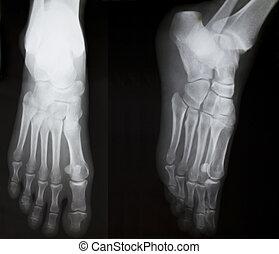 X-ray of both human feet